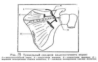 лечение коленных суставов народными средствами видео